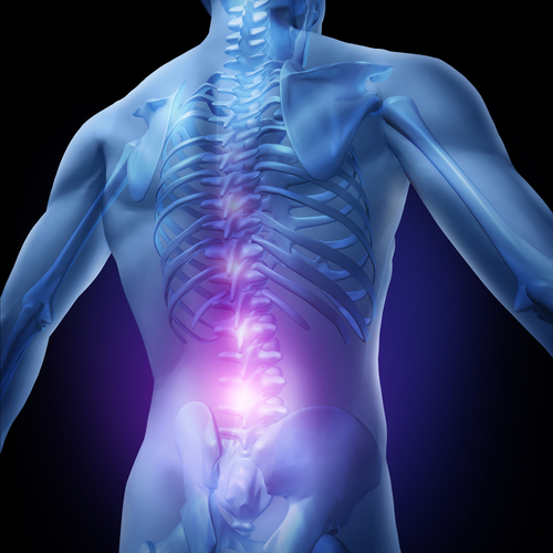 image of a figure experiencing back pain